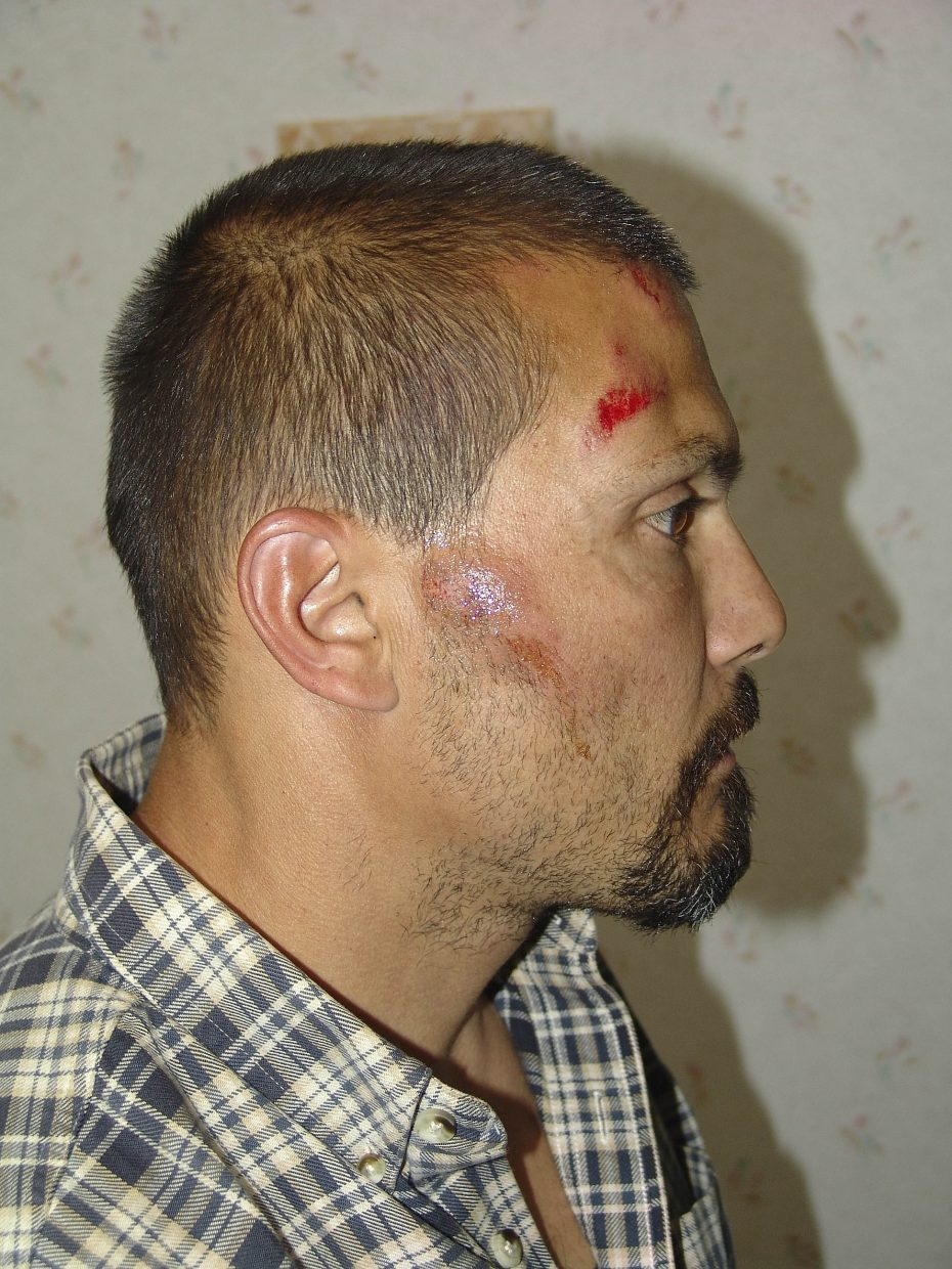 John Ferrugia's injuries were documented by police at Yampa Valley Medical Center.