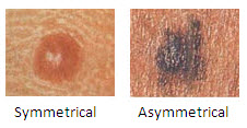 Studies have shown that individuals who review the ABCDE(U) criteria and who review photos of melanomas are better able to detect melanomas.
